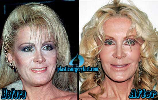 Joan Van Ark Plastic Surgery Photos