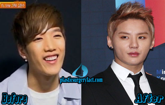 Junsu Kpop Plastic Surgery Before and After