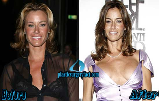 Kelly Bensimon Plastic Surgery Pictures