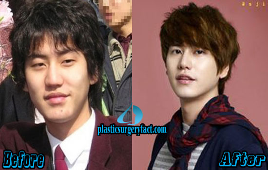 Kyuhyun Kpop Plastic Surgery Before and After