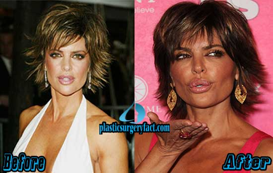 Lisa Rinna Plastic Surgery Pictures