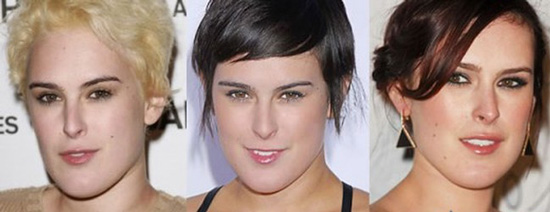 Rumer Willis Plastic Surgery Before and After Pictures