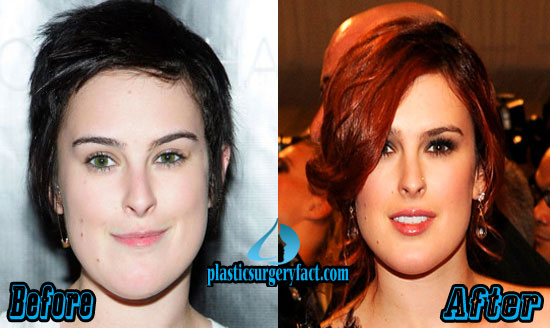 Rumer Willis Plastic Surgery Before and After