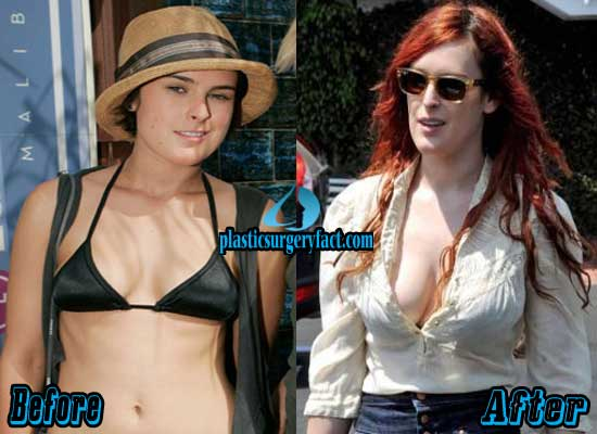 Rumer Willis Plastic Surgery Breast Augmentation