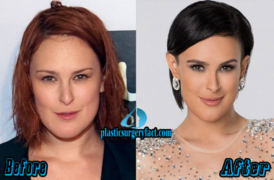 Rumer Willis Plastic Surgery Lips Augmentation