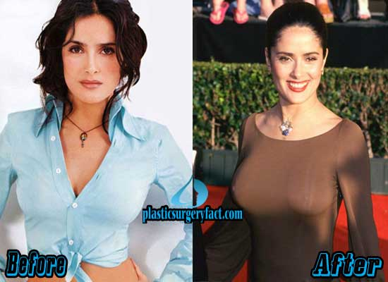 Salma Hayek Before And After Breast Implants