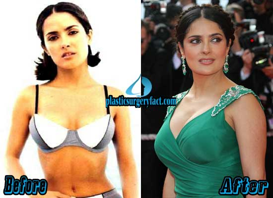 Salma Hayek Breast Augmentation Before and After