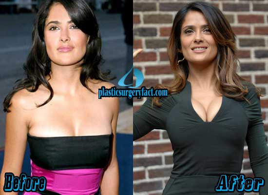 Salma Hayek Breast Implants Before And After