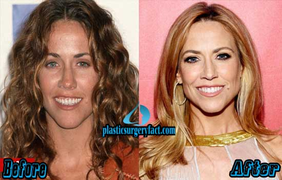 Sheryl Crow Plastic Surgery Before And After