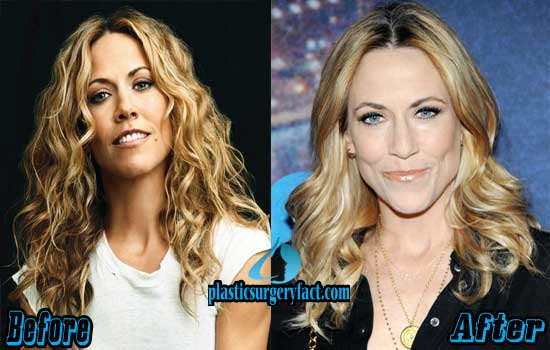 Sheryl Crow Plastic Surgery Pictures
