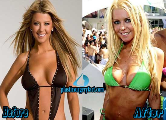 Tara Reid Plastic Surgery Photos