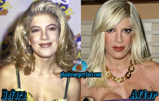 Tori Spelling Plastic Surgery Photos