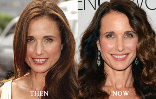 Andie Macdowell Plastic Surgery Before and After Photos