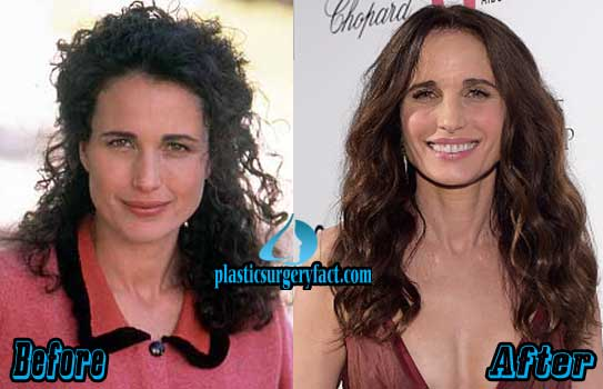 Andie Macdowell Plastic Surgery Facelift