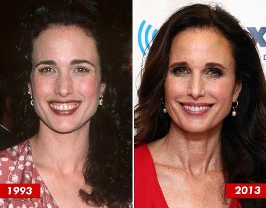 Andie Macdowell Plastic Surgery Pictures