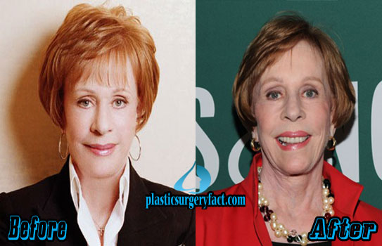 Carol Burnett Plastic Surgery Photos