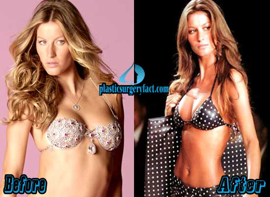 Gisele Bundchen Plastic Surgery Breast Implants