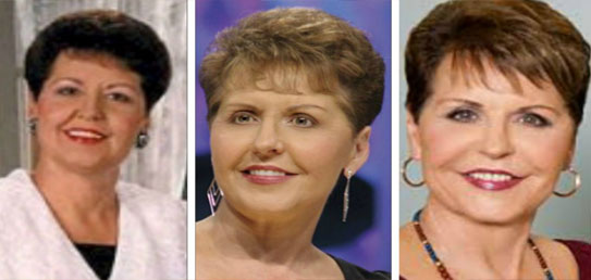 Joyce Meyer Plastic Surgery Pictures