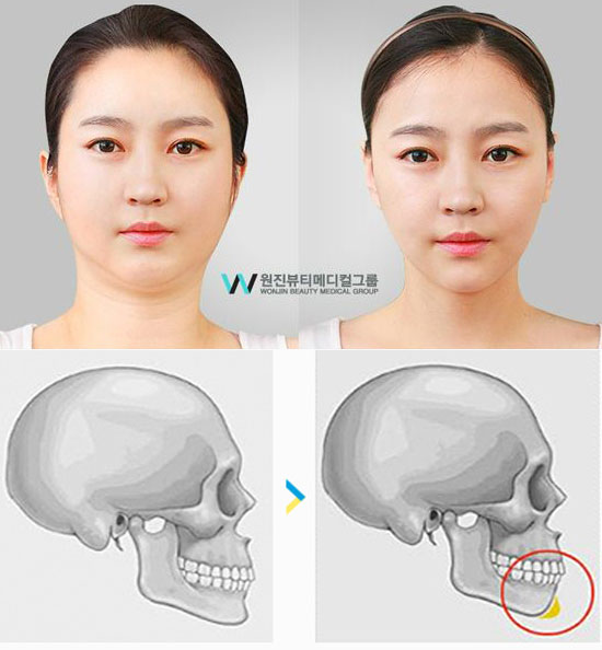 Korean Chin Augmentation Before and After