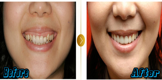 Korean Cosmetic Dental Surgery Before and After