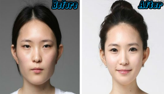 Korean Eyelid Surgery Before and After