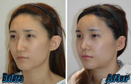 Korean Forehead Augmentation Before and After