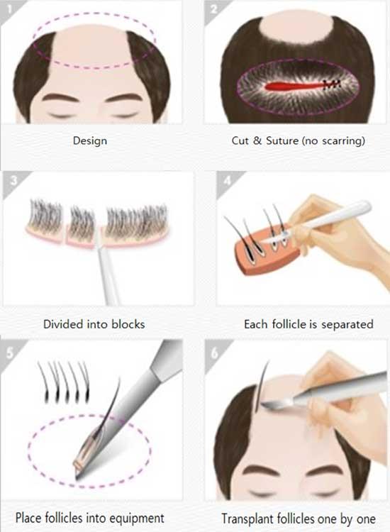 Korean Hair Transplant Surgery Procedure