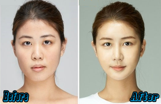 Korean Nose Jobs Before and After