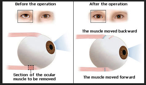 Lazy Eye Surgery Before and After