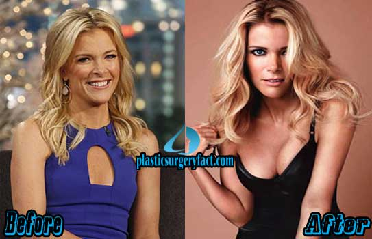 Megyn Kelly Plastic Surgery Breast Implants