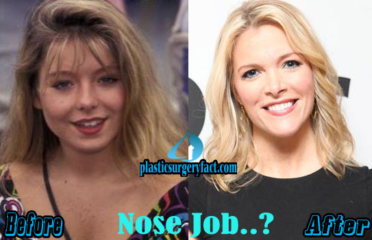 Megyn Kelly Plastic Surgery Nose Job