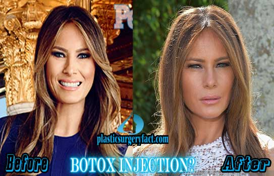 Melania Trump Plastic Surgery Botox Injection
