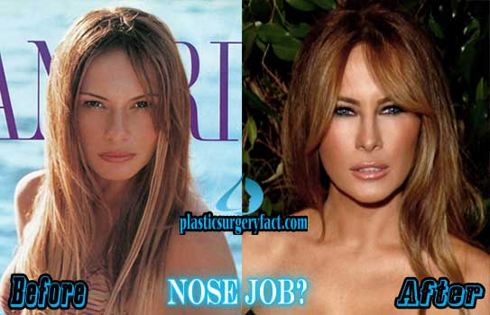 Melania Trump Plastic Surgery Nose Job