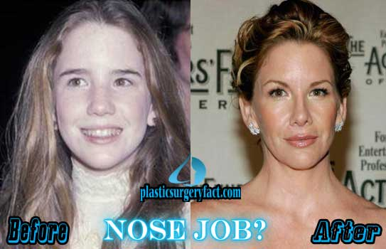 Melissa Gilbert Plastic Surgery Nose Job