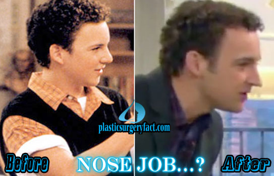 Ben Savage Nose Job Photos