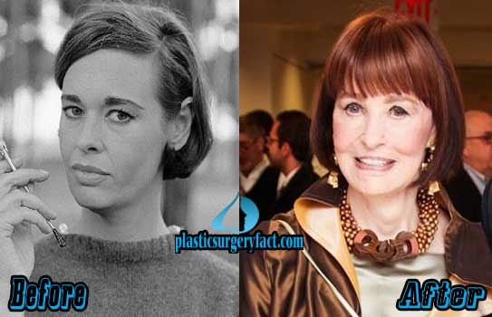 Gloria Vanderbilt Plastic Surgery Photos