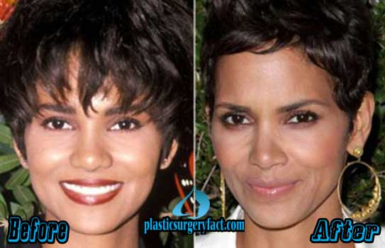 Halle Berry Nose Job Photos