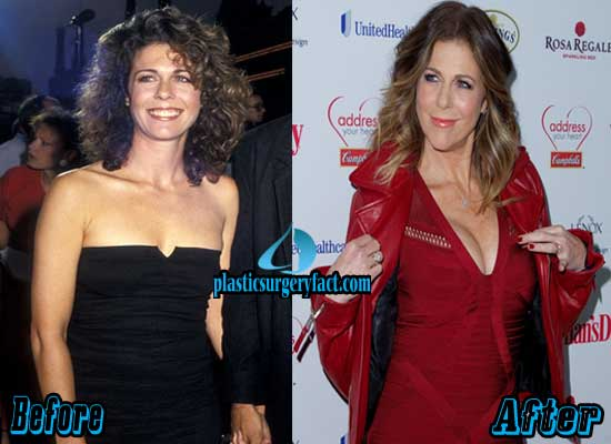 Rita Wilson Plastic Surgery Before and After Boob Job
