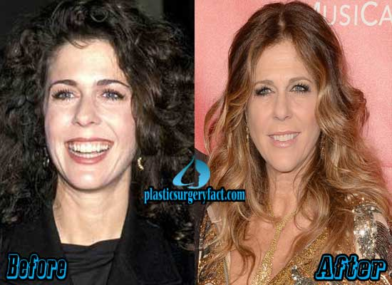 Rita Wilson Plastic Surgery Before and After