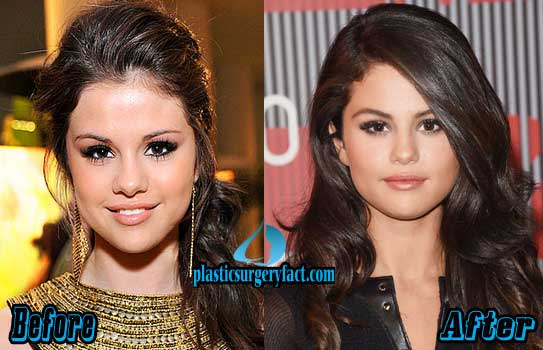 Selena Gomez Nose Job Before and After Photos