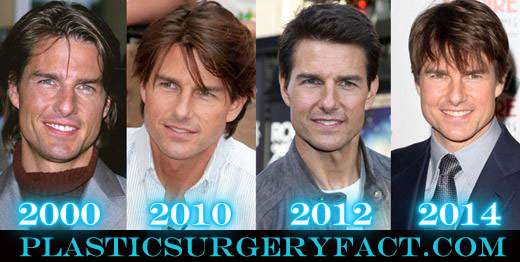 Tom Cruise Nose Job Before and After Photos