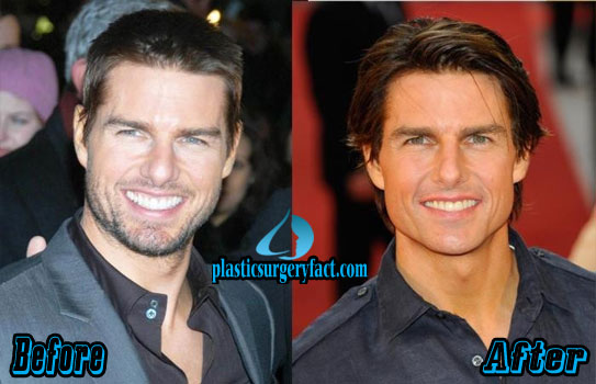 Tom Cruise Nose Job Before and After Pics