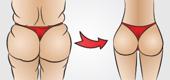 Atlanta Plastic Surgery Buttock Augmentation Before and After