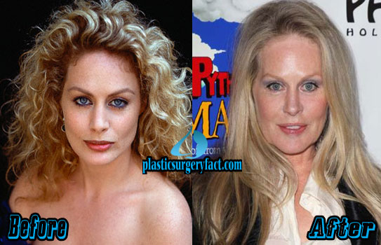 Beverly D Angelo Plastic Surgery 2015