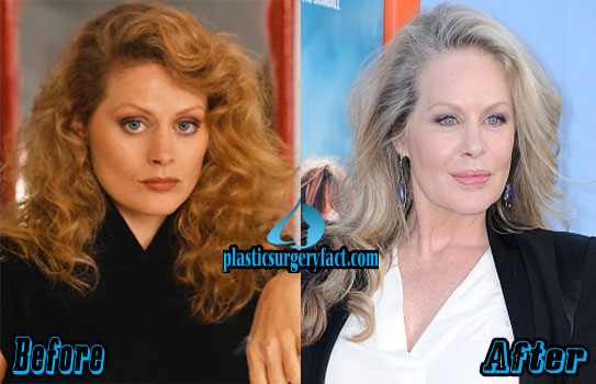 Beverly D Angelo Plastic Surgery Photos