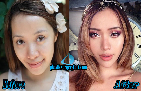 Michelle Phan Nose Job Before and After Pictures