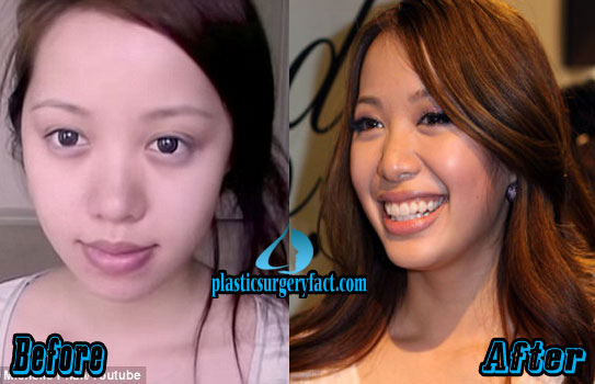 Michelle Phan Nose Job Before and After