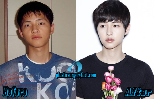 Song Joong Ki Plastic Surgery Nose Job