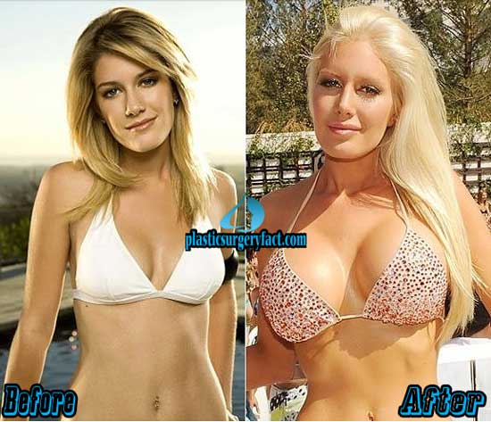 Heidi Montag Plastic Surgery Before and After Images