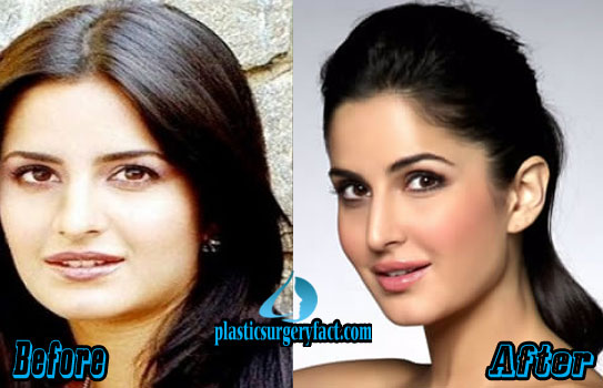 Katrina Kaif Plastic Surgery Lips Before and After